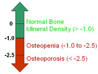 Figure 2: Interpreting Bone Mineral Density Scores