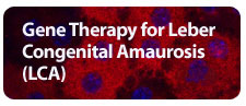 Gene Therapy for Leber Congenital Amaurosis