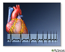 Illustration of a heart and a heart rate EKG