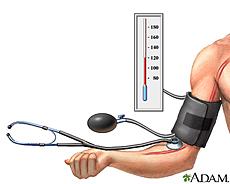 Ilustración de monitoreo de la presión sanguínea