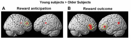 Opposite frontal activity in response to midbrain dopamine
