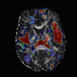 Fiber tract differences in schizophrenia