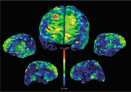 Childhood bedwetting linked to reduced gray matter in the front of the brain (red areas).