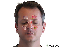 Illustration of the sinuses and sinusitis