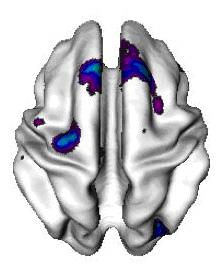 ADHD child brain with areas of thin cortex