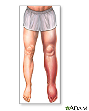 Illustration of swelling of the leg, ankle and foot