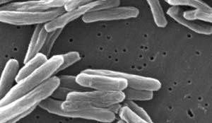 Mycobacterium tuberculosis, the bacteria that cause tuberculosis, up close