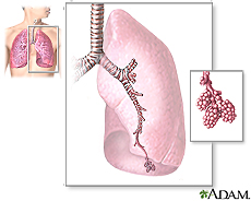 Illustration of the major features of the lungs, including the bronchi, the bronchioles and the alveoli