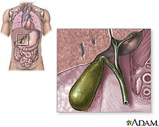 Ilustración de la vesícula biliar