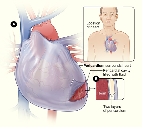 The image displays Figure A and Figure B. Figure A shows the sac surrounding the heart.  Figure B is an enlargeed cross-section of the pericardium which displays two layers of tissue and the fluid between the layers.