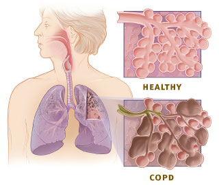 The illustration show the respiratory system and cross-sections of healthy alveoli and alveoli with COPD.
