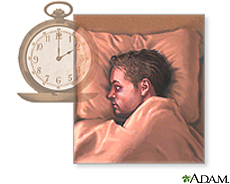 Illustration of a man with sleeping problems