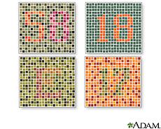 Illustration of various tests for color blindness