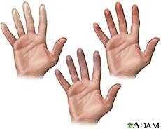 Illustration of fingers showing characteristics of Raynaud's phenomenon