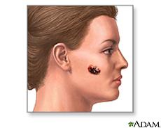 Illustration of a malignant melanoma on the cheek