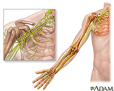 Illustration of the shoulder and arm featuring the brachial plexus