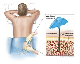 Aspiración y biopsia de la médula ósea;  el dibujo muestra a un paciente acostado boca abajo en una camilla y una aguja de Jamshidi (una aguja larga y hueca) que se inserta en el hueso de la cadera. El recuadro muestra la aguja de Jamshidi que se inserta a través de la piel hasta la médula ósea del hueso de la cadera.