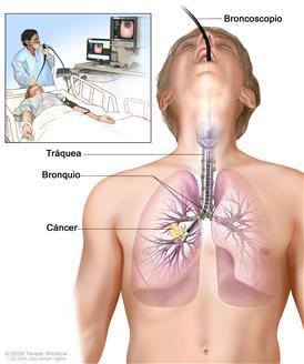 Broncoscopia; el dibujo muestra un broncoscopio insertado a través de la boca, la tráquea y el bronquio, hasta el pulmón; los ganglios linfáticos a lo largo de la tráquea y los bronquios, y el cáncer en un pulmón. El recuadro muestra al paciente acostado sobre una camilla mientras se le realiza la broncoscopia.