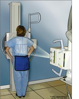 Radiografía del tórax; el dibujo muestra al paciente de pie con la espalda hacia la máquina de rayos-X. Las radiografías se utilizan para tomar fotografías de los órganos y huesos del tórax.  Las radiografías pasan a través del cuerpo y se plasman en una película.