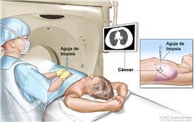 Biopsia de pulmón; el dibujo muestra a un paciente tendido sobre una camilla que se desliza a través de una máquina de tomografía computarizada (TC) y una imagen de una radiografía de un corte transversal del pulmón en un monitor encima del paciente. El dibujo también muestra a un médico usando la imagen radiográfica para ayudarlo a colocar la aguja de biopsia a través de la pared torácica, hasta el área del tejido anormal del pulmón. El dibujo del recuadro muestra una vista lateral de la cavidad torácica y los pulmones, con la aguja de biopsia insertada en el área de tejido anormal.