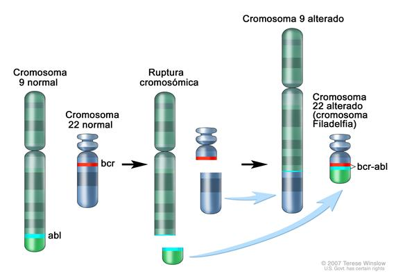 Cromosoma Filadelfia; los tres paneles del dibujo muestran una sección del cromosoma 9 y una sección del cromosoma 22 que se rompen e intercambian lugares, creando un cromosoma 22 alterado llamado cromosoma Filadelfia. En el panel izquierdo, el dibujo muestra el cromosoma 9 normal con el gen abl y el cromosoma 22 normal con el gen bcr. En el panel del centro, el dibujo muestra el cromosoma 9 que se separa a la altura del gen abl y el cromosoma 22 que se separa por debajo del gen bcr. En el panel de la derecha, el dibujo muestra el cromosoma 9 unido a la sección del cromosoma 22 y el cromosoma 22 con la sección del cromosoma 9 que contiene parte del gen abl unido a él. El cromosoma 22 alterado con el gen abl-bcr se llama cromosoma Filadelfia.