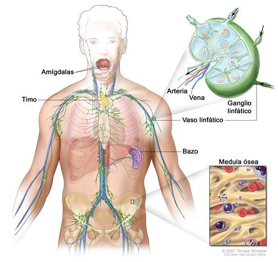 Sistema linfático; el dibujo muestra los vasos linfáticos y los órganos linfáticos, incluso los ganglios linfáticos, las amígdalas, el timo, el bazo y la médula ósea. Un recuadro muestra la estructura interior de un ganglio linfático y de los vasos linfáticos adjuntos, con flechas que indican como circula la linfa (un líquido claro) hacia adentro y afuera del ganglio linfático. Otro recuadro muestra una vista ampliada de la médula ósea con células sanguíneas.