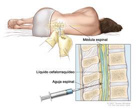 Punción lumbar; la imagen muestra a un paciente acostado sobre una camilla en posición encorvada y una aguja intrarraquídea o espinal, la cual es larga y fina, que se inserta en la parte inferior de la espalda. El recuadro muestra una vista de cerca de esta aguja insertada en el líquido cefalorraquídeo (LCR), en la parte inferior de la columna vertebral.