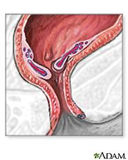 Illustration of inflamed hemorrhoids