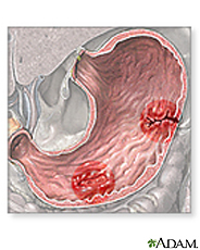 Illustration of stomach ulcers