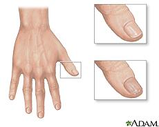 Illustration of a normal thumb nail and a dry, brittle thumb nail