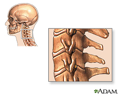 Illustration of the cervical vertebrae