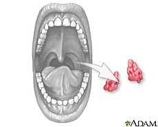 Illustration of a tonsillectomy