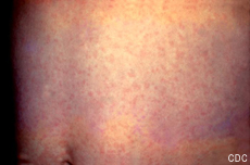 Photograph of an abdomen with a rash caused by rubella