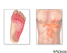 Illustration of tinea infections