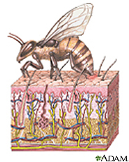 Illustration of a bee with stinger in the skin