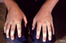 Fotografía de unas manos rojas y sarpullidas por la quinta enfermedad