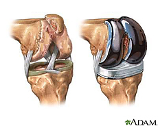 Illustration of a knee before and after knee transplantation