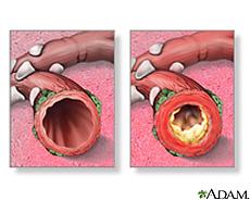 Illustration of normal bronchi and bronchi with bronchitis