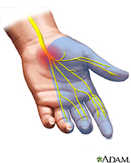 Illustration of the carpal tunnel syndrome
