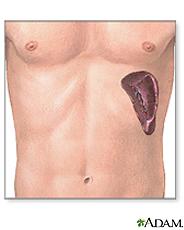 Illustration of the spleen