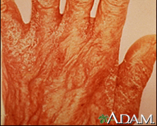 Photograph of a hand with scabies rash