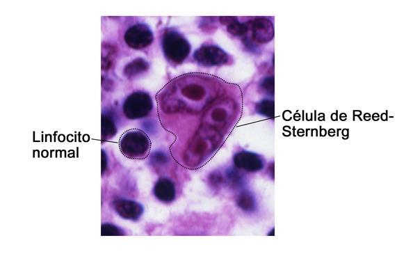 Célula de Reed-Sternberg; la fotografía muestra los linfocitos normales comparados con una célula de Reed-Sternberg.