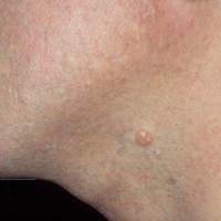 A single molluscum bump on the neck of an adult man. Typical bumps are approximately 3-5 mm in diameter