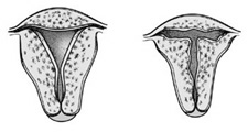 Image of the inside of a normal and a 'T' shaped uterus (right)