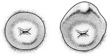 Image of a normal cervix, and one with a 'hood'