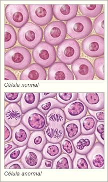 Células normal y anormal