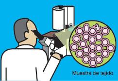 El patólogo usa un microscopio para examinar los tejidos.