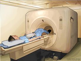 Imaginología por resonancia magnética (IRM) del abdomen; el dibujo muestra al paciente en una camilla que se desliza hacia la máquina de IRM, la cual toma una radiografía de la parte interior del cuerpo.  La almohadilla en el abdomen del paciente ayuda a tomar imágenes más claras.