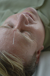 An acupuncture needle in a man's forehead. © Bob Stockfield