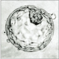 Human Blastocyst Showing Inner Cell Mass and Trophectoderm